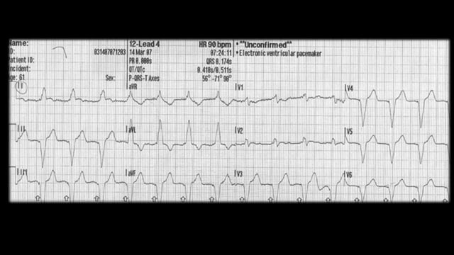 ST Elevation MI in the Setting of a Paced Rhythm