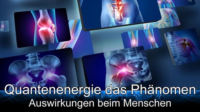 90.10.-Quantenenergie das Phänomen - Auswirkungen beim Menschen