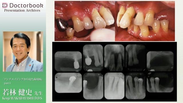 アンチエイジングからみた歯周病