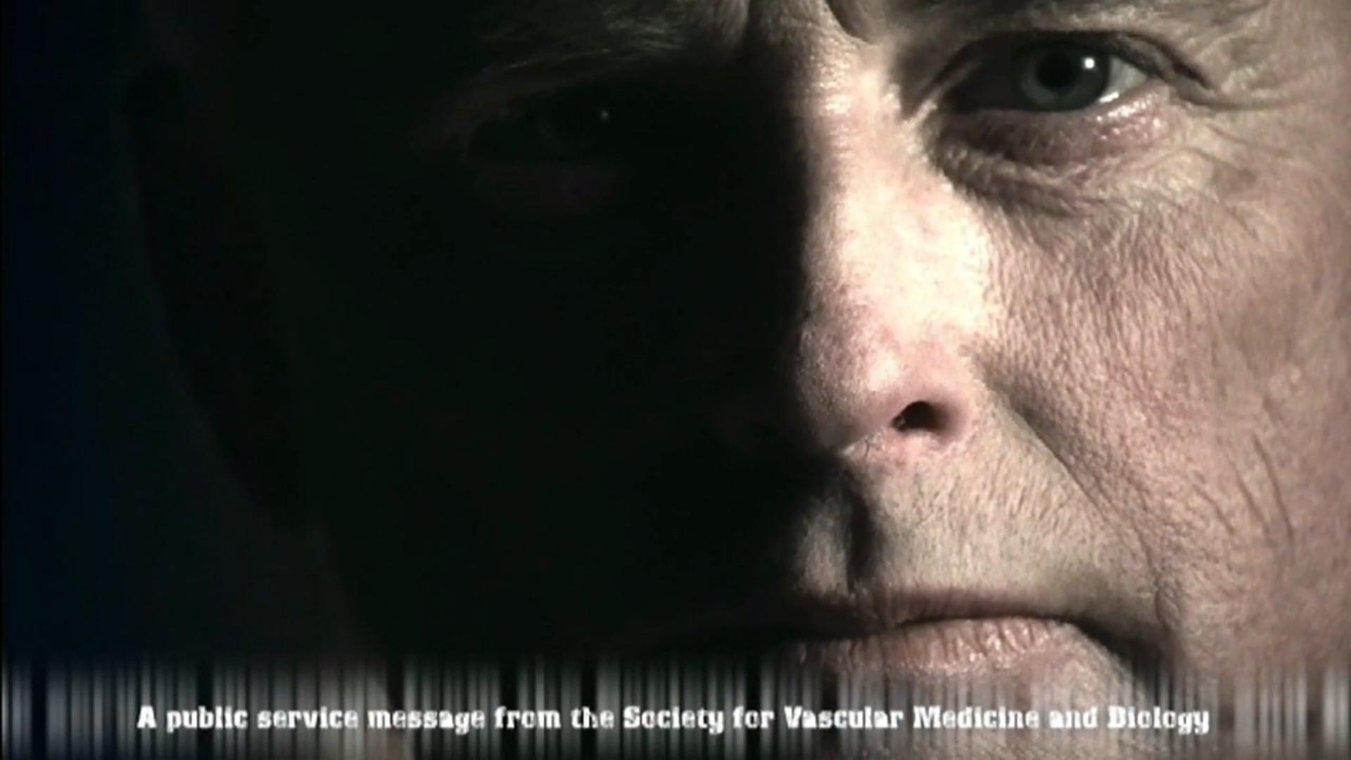 Merck DVT Commercial