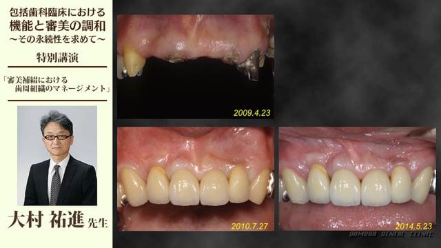 審美補綴における歯周組織のマネージメント