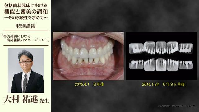 審美補綴における歯周組織のマネージメント #2