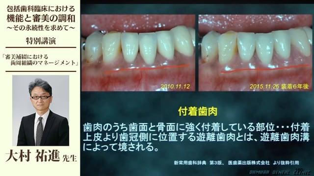審美補綴における歯周組織のマネージメント #3