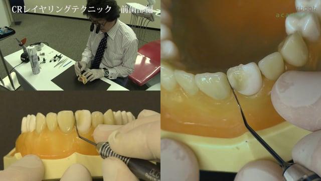 コンポジットレジンレイヤリングテクニック 前歯部編