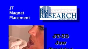 JT-3D Jaw Tracking – JT Magnet Placement