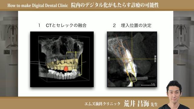 院内のデジタル化がもたらす診療の可能性