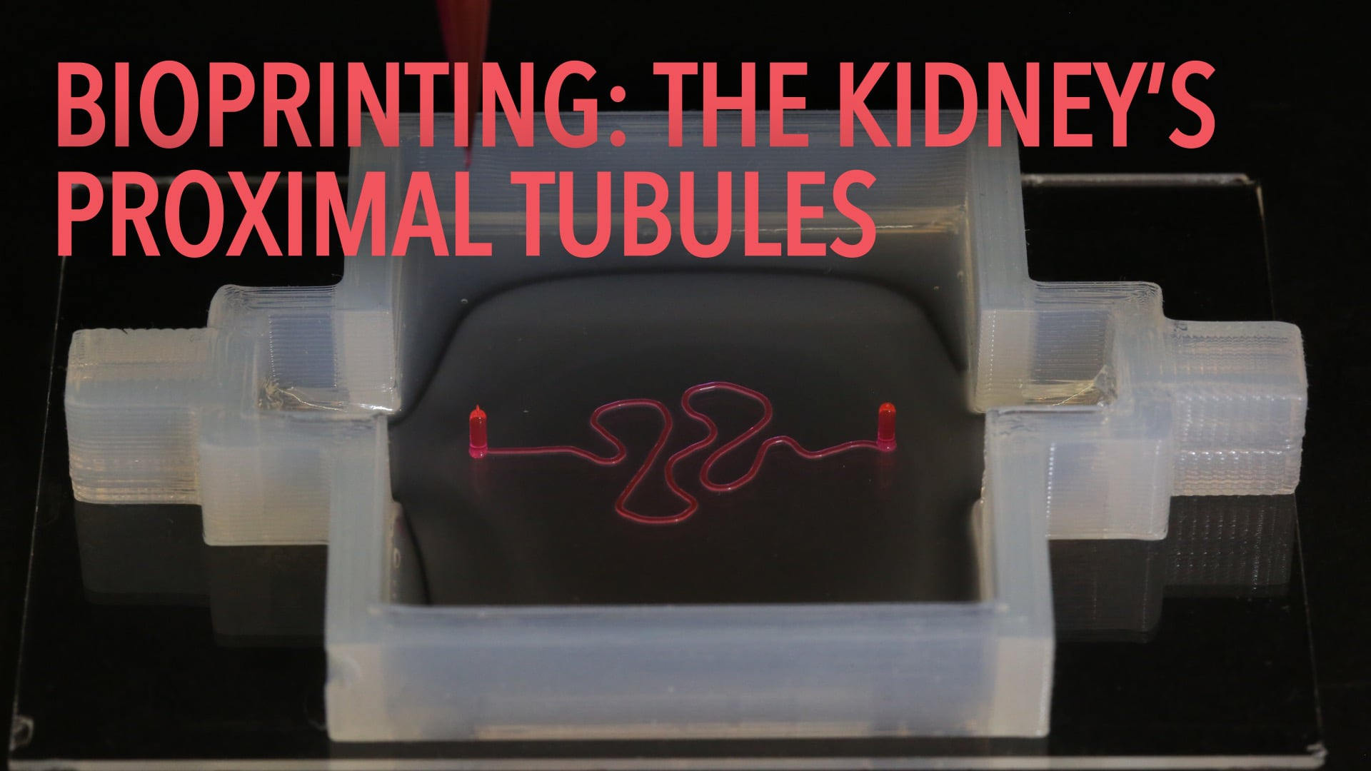 Bioprinting: The Kidney's Proximal Tubules