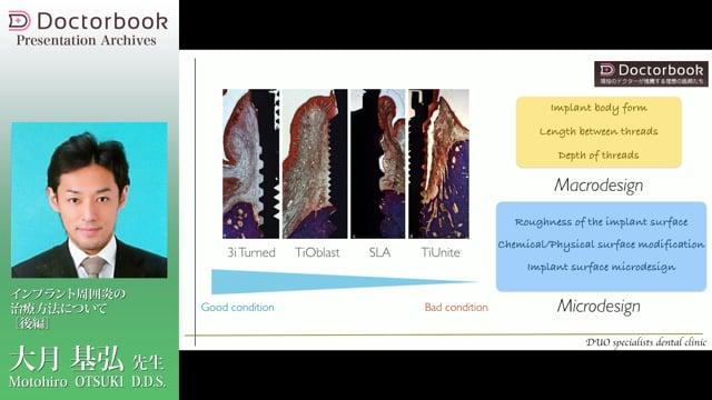 インプラント周囲炎の治療方法について(後編)