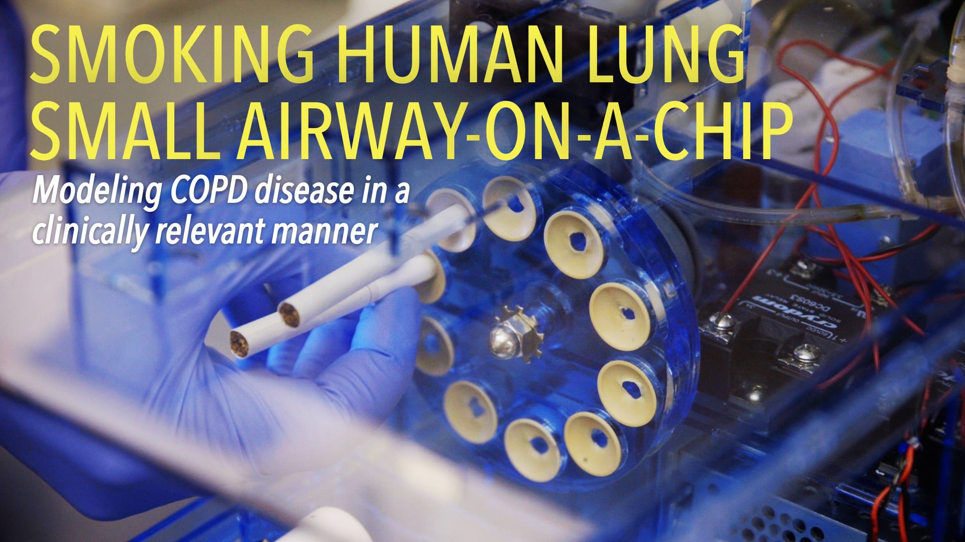 Smoking Human Lung Small Airway–on–a–Chip