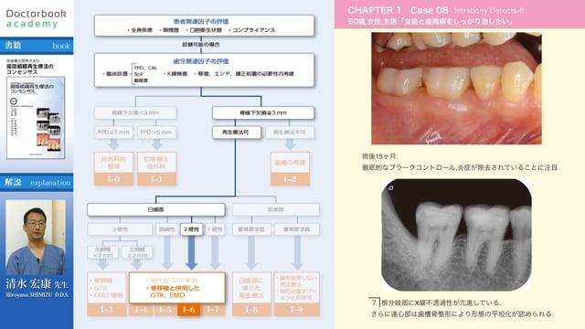 【BookReview】『歯周組織再生療法のコンセンサス』