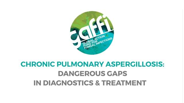 Chronic Pulmonary Aspergillosis: Dangerous Gaps in Diagnostics & Treatment