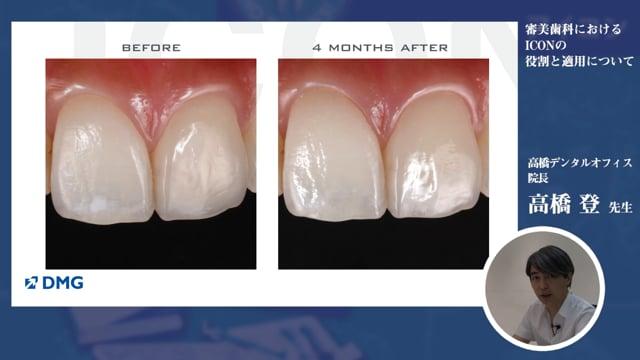 審美歯科におけるICON(アイコン)の役割と適用について