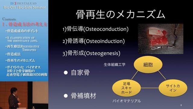 Bio-Oss/Bio-Gideセミナー