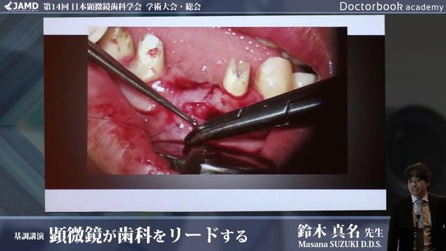 第14回 日本顕微鏡歯科学会 学術大会 基調講演