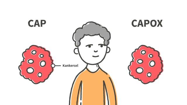 Chemotherapie CAPOX - Narratief