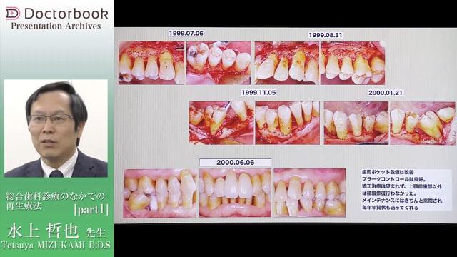 総合歯科診療のなかでの再生療法