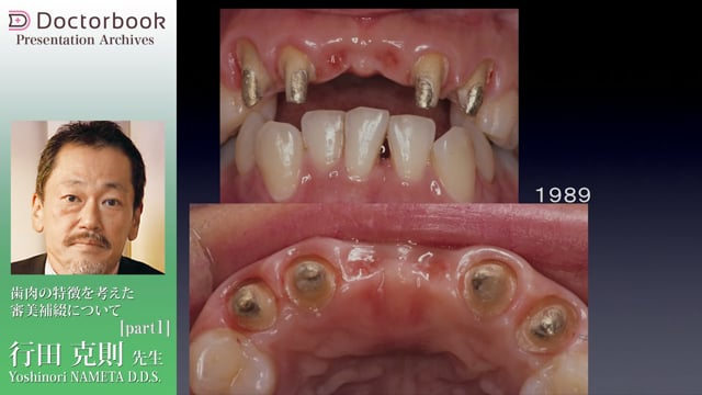 歯肉の特徴を考えた審美補綴について