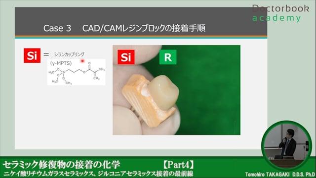 #4 CAD/CAM接着・まとめ