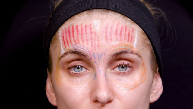 Brow Asymmetry Frown Injections
