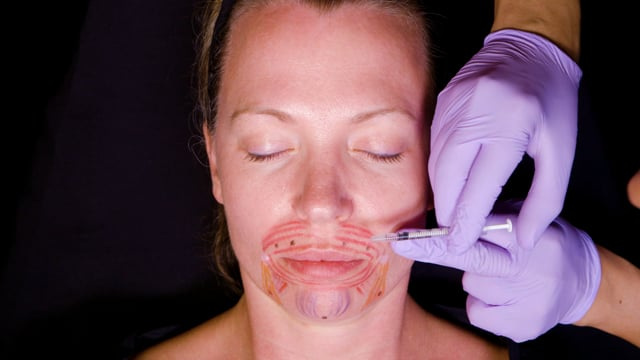 Botox Orbicularis Oris, DAO And Mentalis -
