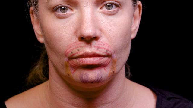 Botox Orbicularis Oris, DAO And Mentalis