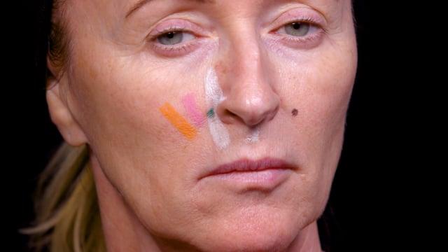 Nasolabial Gingival Smile Botox Injections