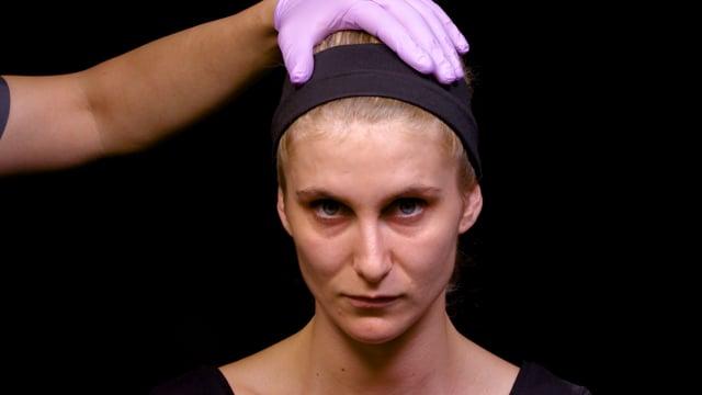 Cannula Tear Trough Treatment