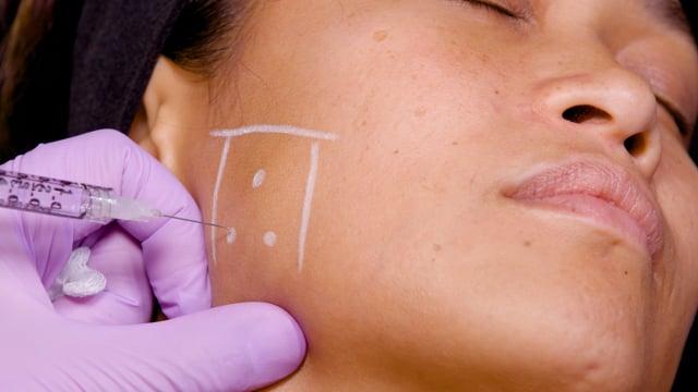 Botox: Hypertrophic Masseter