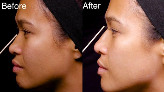 Dermal Filler Nose Base Injections