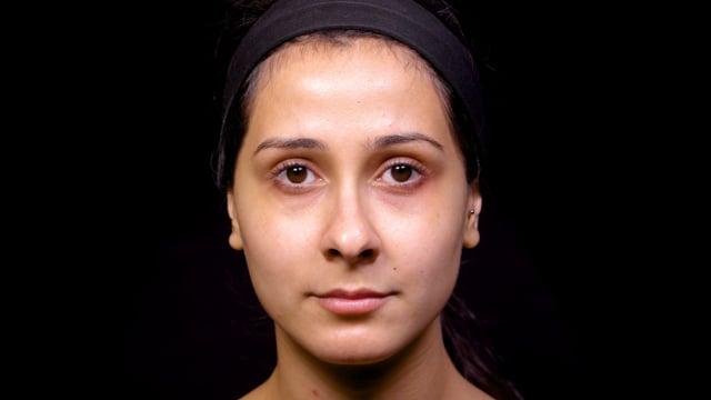 BTX Dilator Naris Nasal Flaring Injections