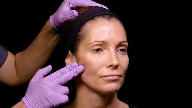 Facial Rejuvenation With Dermal Filler