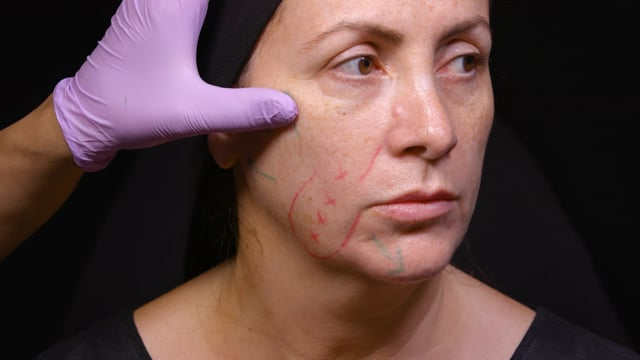 Dermal Filler Full Face Treatment