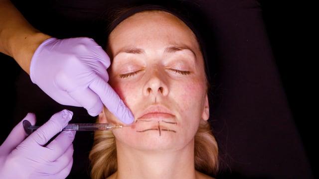 Dermal Filler Lip & Jawline Injections