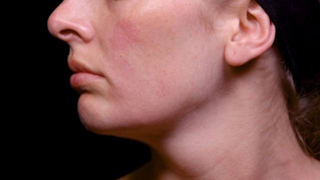 Columella Treatment Filler Injections