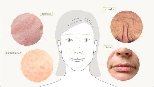 Facial ageing