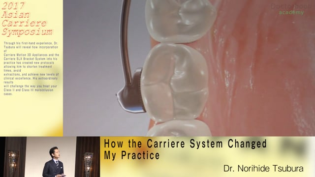 How the Carriere System Changed My Practice【Digest】