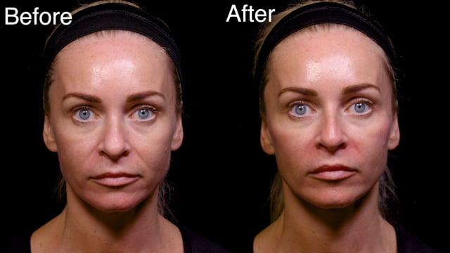 Dermal Filler Cheekbone Elevation Injections