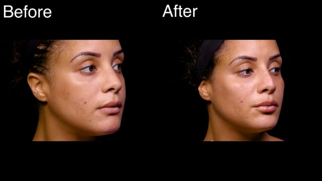 Full Face Beautification Injections