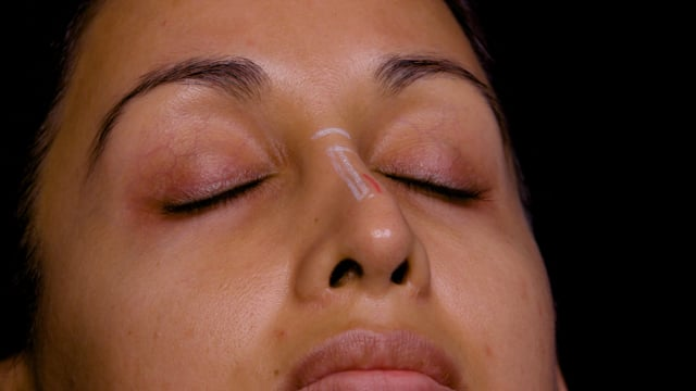 Nose Deviation Correction Injections