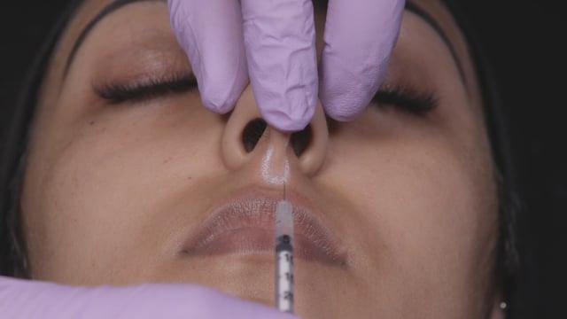 BTX Dancing Nose Tip Injections