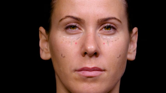 Tear Trough: Treating Hollowness In Cheek And Lid