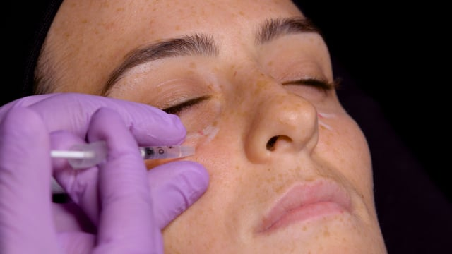 Tear Trough Filler Injections
