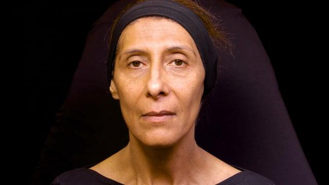 Dermal Filler Facial Rejuvenation -