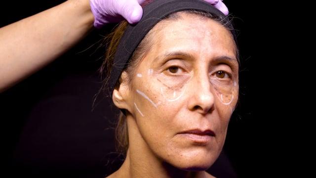 Dermal Filler Facial Rejuvenation