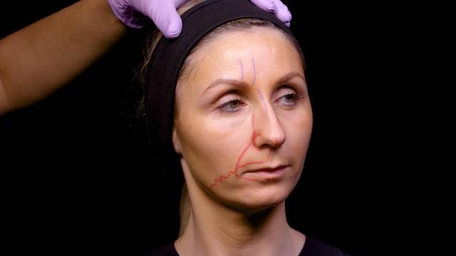 Treating A Bump On Dorsum Of Nose