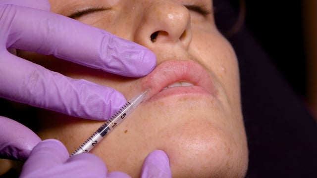 Lip-Chin Distance Injections