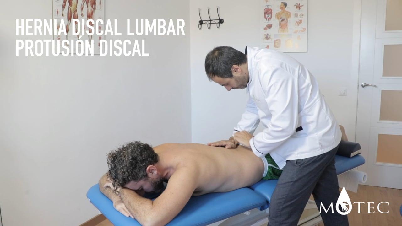 Osteopatía en hernia discal lumbar (Protusión lumbar)