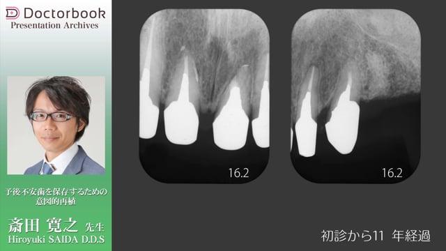 予後不安歯を保存するための意図的再植