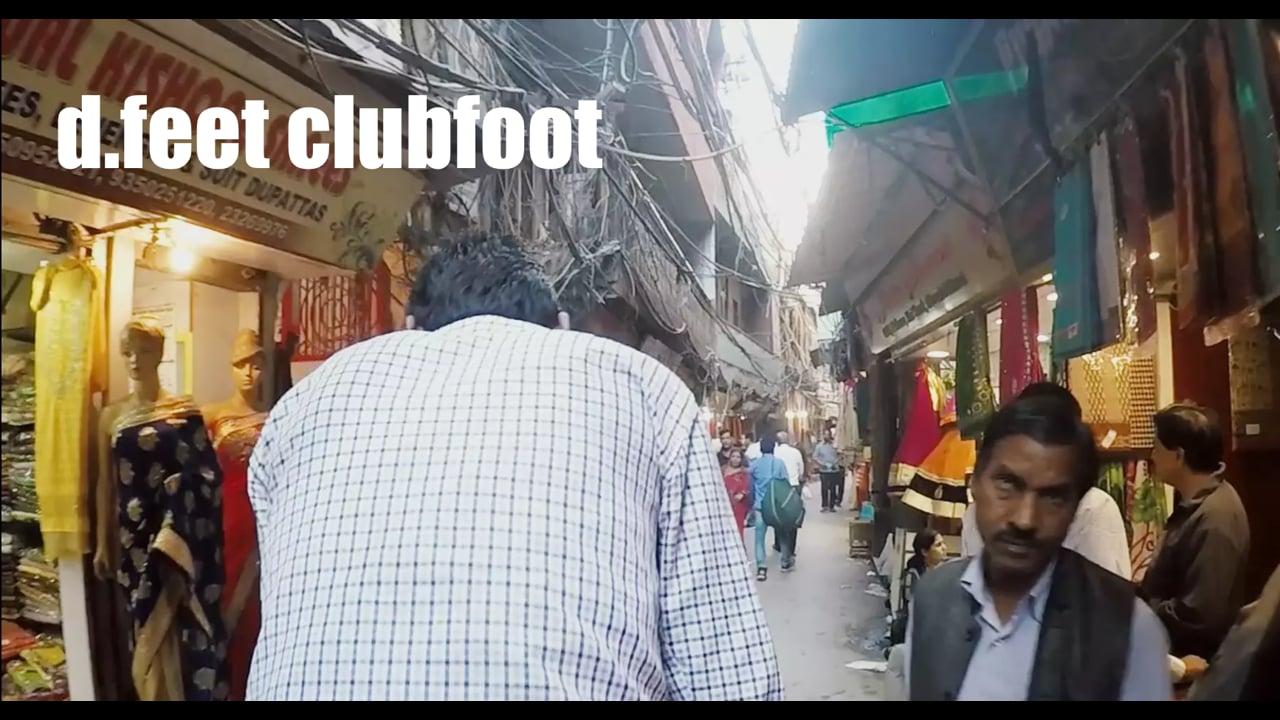 d.feet clubfoot // Social E Lab 2015