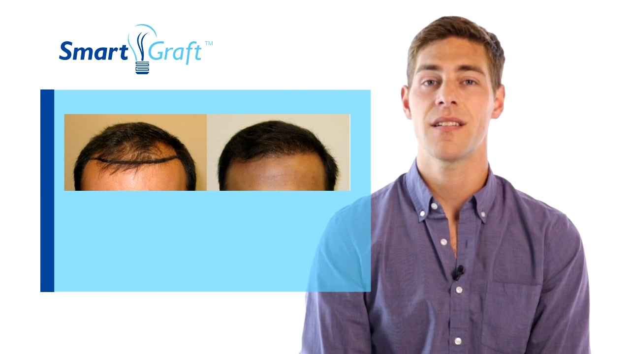 New_What is FUE hair transplatation